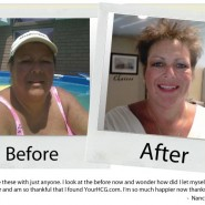 your-hcg-before-after_nancy